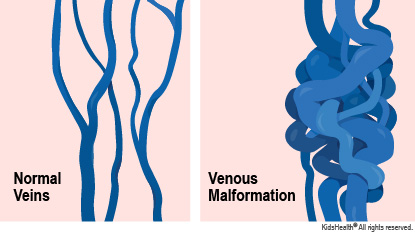 Diagram showing normal veins and the larger, more tangled veins that happen with a venous malformation.